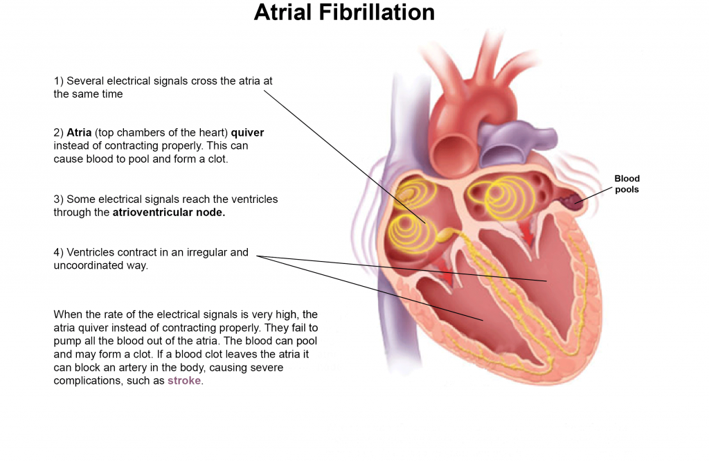 about atrial fibrillation, Sphenoid